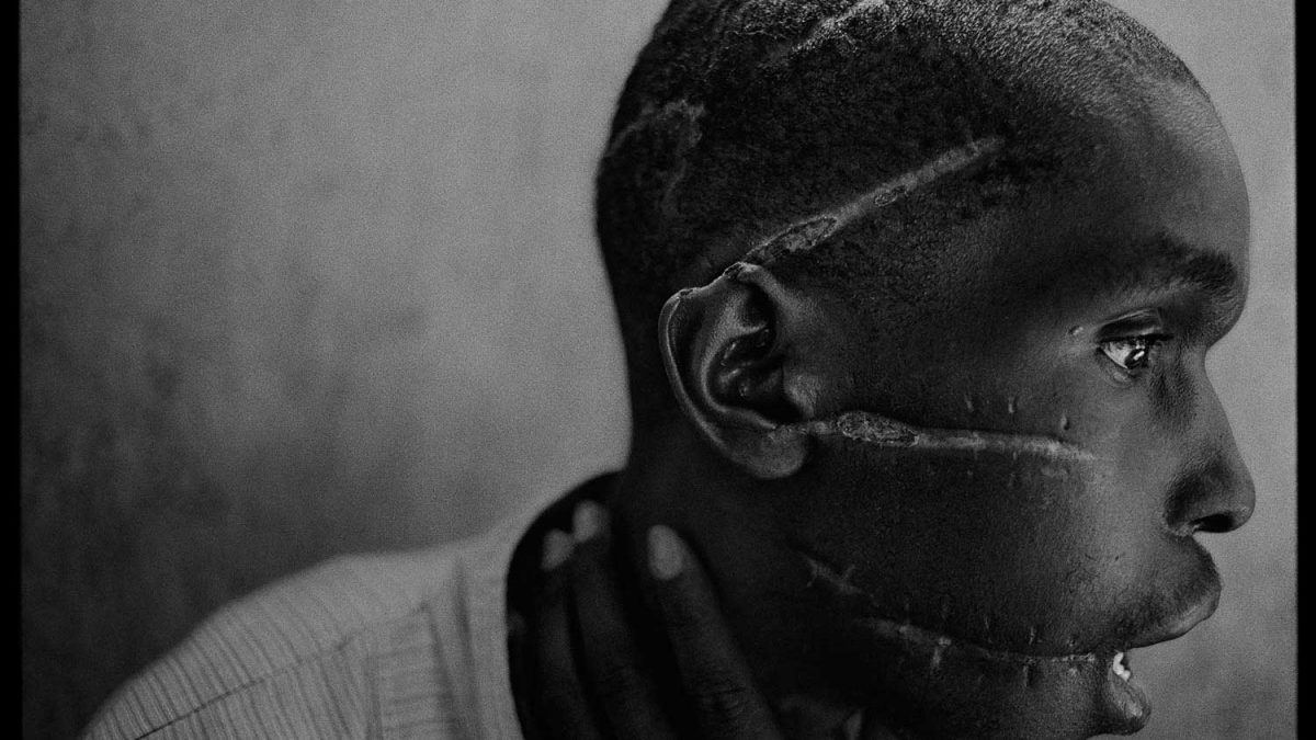 یک جوان هوتو که مخالف نسل کشی بود و در کمپ زندانی شد. به او گرسنگی دادند و با قمه به او حمله کردند. او سرانجام توانست بعد از آزاد شدن زنده بماند و تحت مراقبت صلیب سرخ رواندا قرار گرفت. عکس از جیمز نچوی. ۱۹۹۴